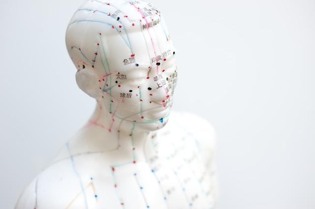 akupunkturbild-2.jpg